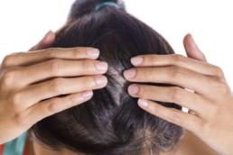 Dermatite seborroica del capillizio