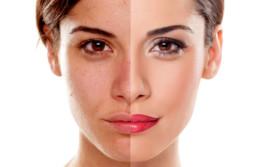 acne e peeling chimico